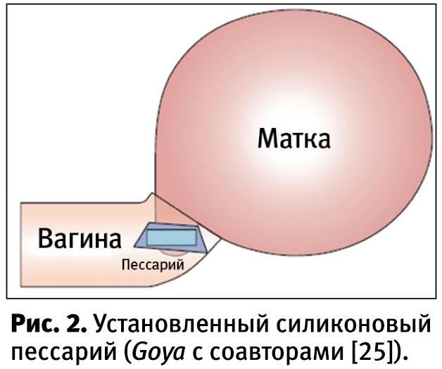 Шейка матки 25 мм на 25 неделе беременности