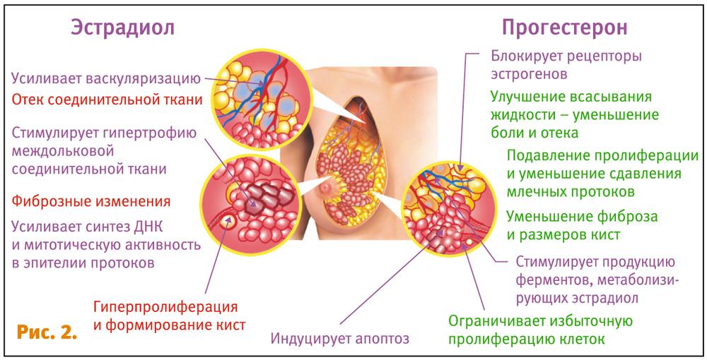 Масталгия